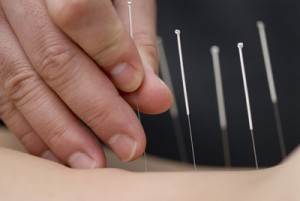 Acupuncture, les aiguilles qui soulagent