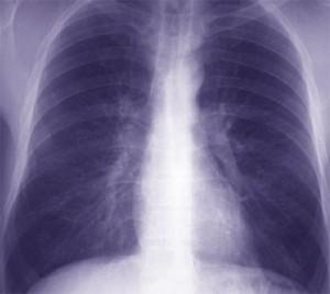 La bronchite aiguë : virale ou bactérienne?