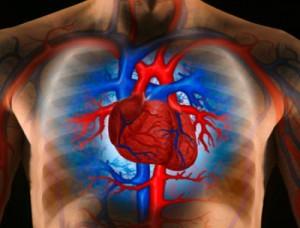Le risque d'infarctus