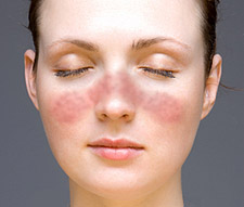Le lupus discoïde