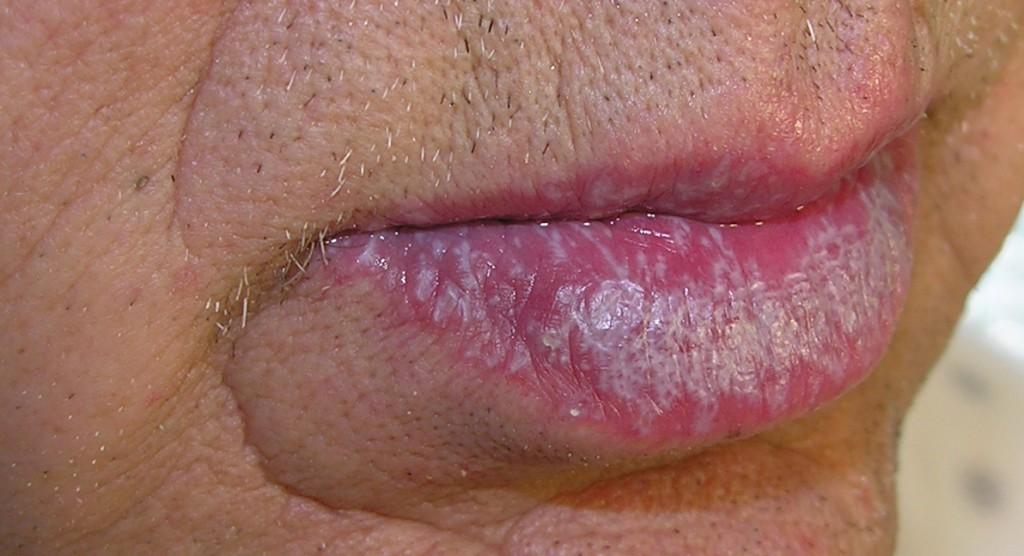 lichen simplex chronicus- Encyclopedie - Dokterdokter.nl