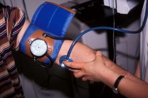 Hypertension Artérielle : définition, causes, symptômes et..
